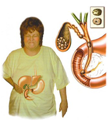 Dấu hiệu của nhiễm trùng túi mật
