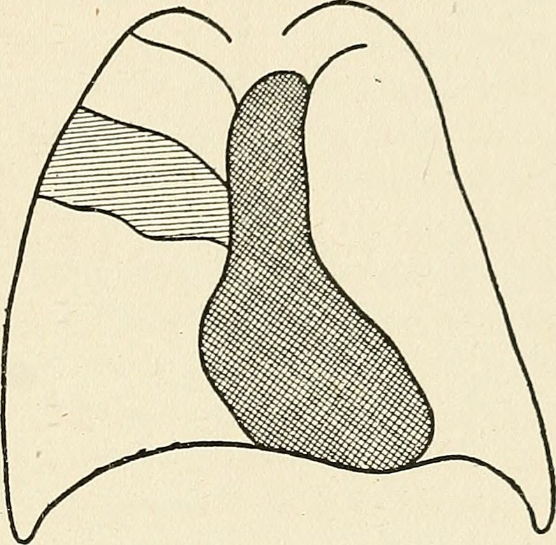 Image from page 62 of Radio-diagnosis of pleuro-pulmonary affection (1918)