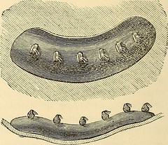 "Image from page 943 of ""The principles and practice of surgery"" (1872)"