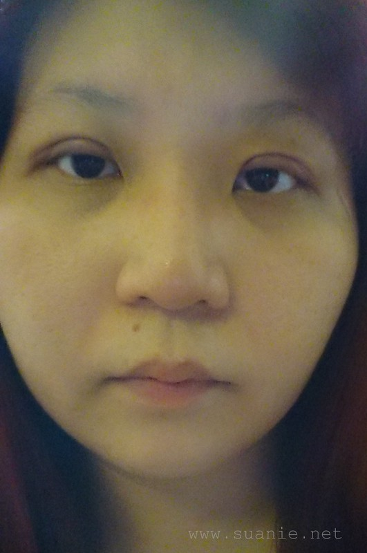Suanie double eyelid surgery - Day 11