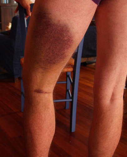 Dead Leg Bruise
