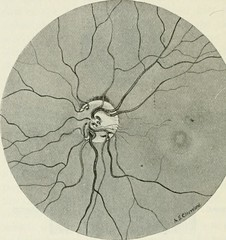"Image from page 367 of ""The commoner diseases of the eye : how to detect and how to treat them"" (1904)"