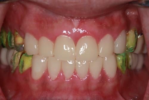 台中黃經理牙醫診所-氧化鋯全瓷冠假牙植牙重建 (10)