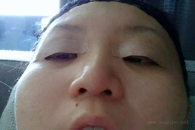 Suanie double eyelid surgery - Day 02