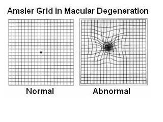 Abnormal Amsler Grid