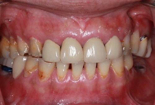 台中黃經理牙醫診所-氧化鋯全瓷冠假牙植牙重建 (4)