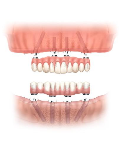 台中黃經理牙以診所黃院長植牙新技術:All-on-4 (4)