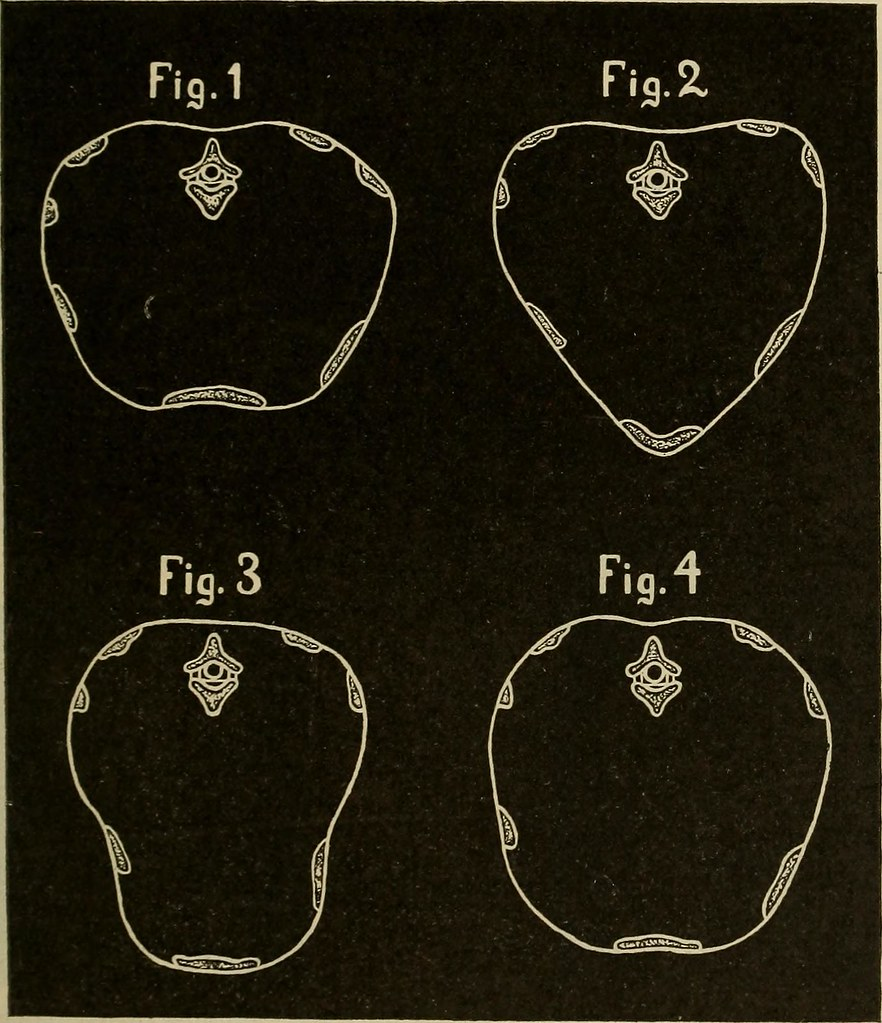 Image from page 308 of Medical diagnosis for the student and practitioner (1922)