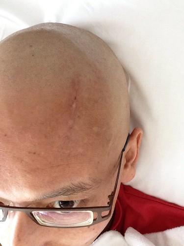 抜糸後の額の傷