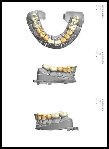 台中黃經理牙醫診所-陳柏均醫師-全口全瓷冠重建案例10