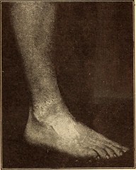 "Image from page 424 of ""Physical culture"" (1899)"
