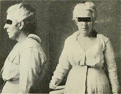 """Image from page 33 of """"The Journal of nervous and mental disease"""" (1874)"""