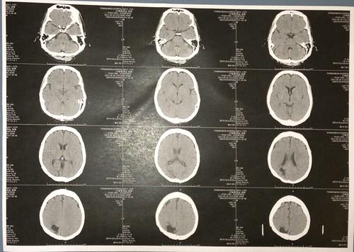 転倒後の脳のCT画像