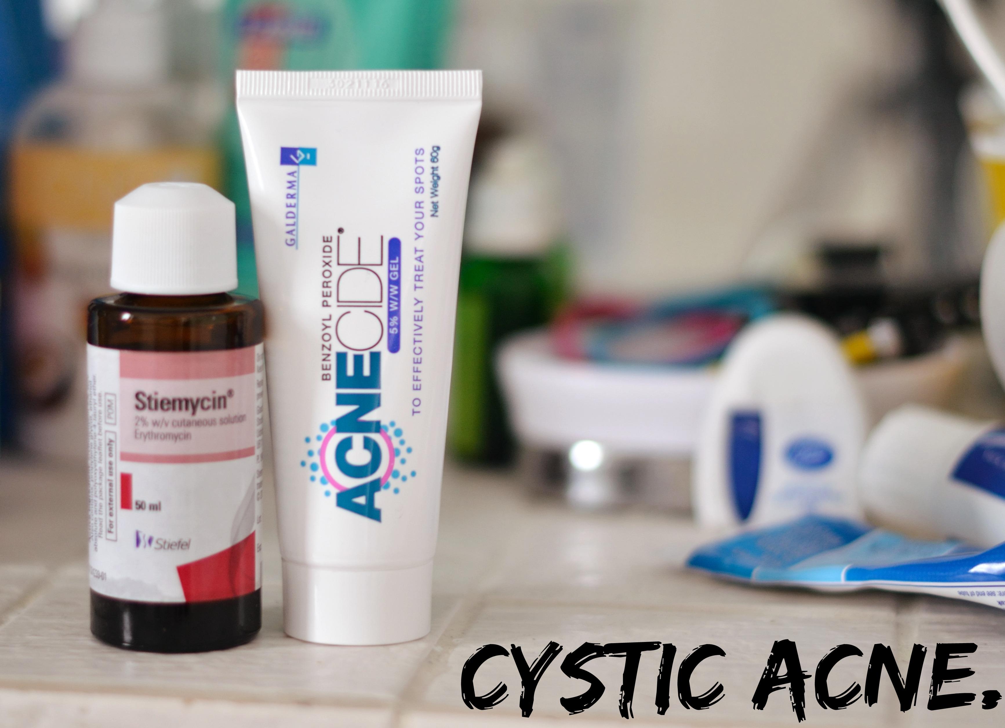 Stiemycin & Acnecide for Cystic Acne.