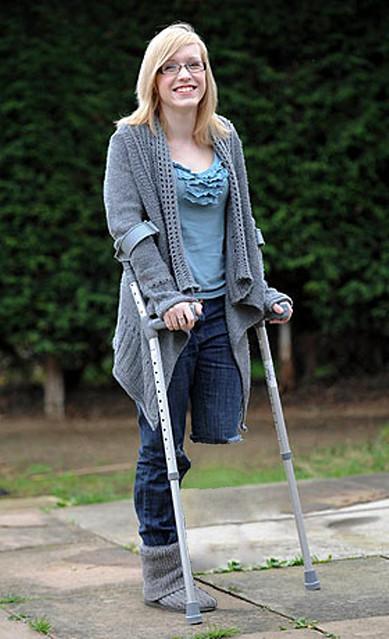 Sak Amputee Women On Crutches Images-8665