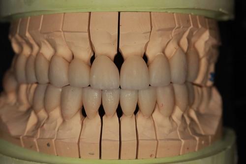 台中黃經理牙醫診所-氧化鋯全瓷冠假牙植牙重建 (11)