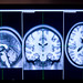 A Structural Magnetic Resonance Image of a human brain is used to ensure the proper placement of Near Infrared Spectroscopy (fNIRS) sensors in the Non-Invasive Brain Stimulation (NIBS) Team laboratory at Wright Patterson Air Force Base, Ohio, Jul 19, 2016.  Researchers in the NIBS lab at the Air Force Research Laboratory, led by Dr. Richard A. McKinley, Ph.D., are exploring how directed electrical stimulation to the human brain affects cognition, fatigue, mood and other areas with the end goal of improving warfighter awareness, memory and focus.  (U.S. Air Force photo by J.M. Eddins Jr.)