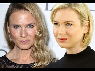 Renee Zellweger's New Face Shocks Twitter