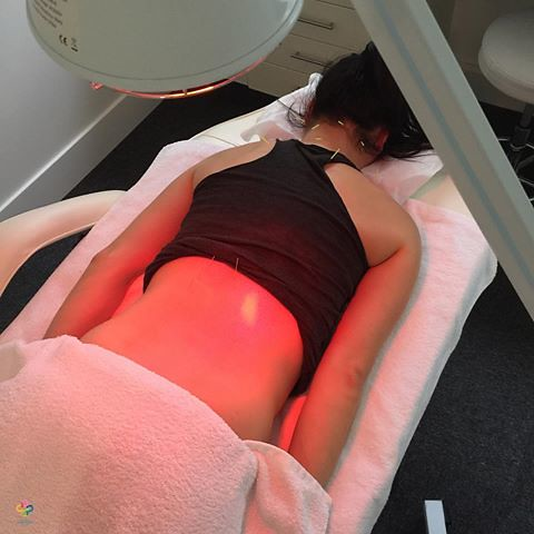 Get the Best Exact Point Acupuncture for Lower Back Pain