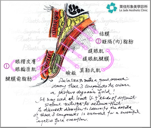 高雄萊佳形象美學診所-賴慶鴻醫師談眼瞼下垂的影響