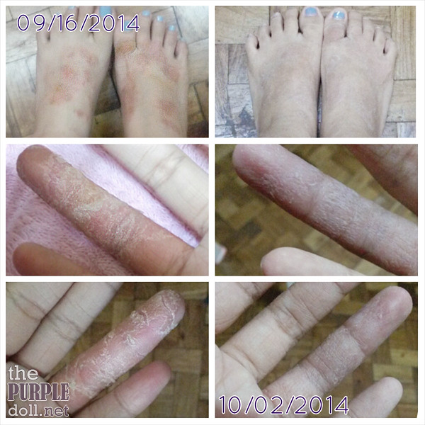 Sept to Oct TSW Feet and Fingers