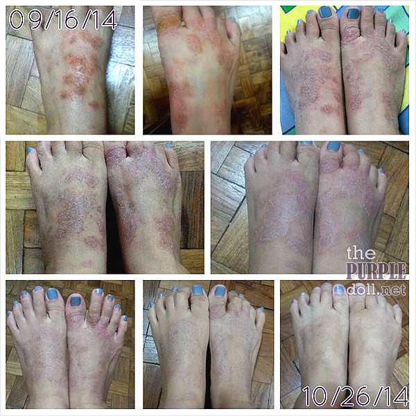 Topical steroid withdrawal eczema on feet
