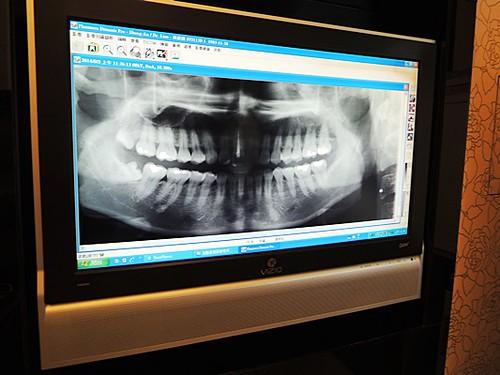 台中豐美牙醫診所-轉貼台中滔客誌文章 (14)