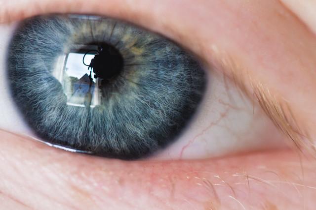 [195] Blue Blue Eye