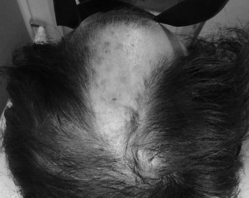 20141111_ハゲ過ぎヤバイ!と気付いた時の頭部写真(モノクロ化だけでは生々し過ぎたので油絵風加工を加えて肌の質感抑えてます)