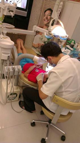 豐美牙醫溝隙封填防蛀 (5)