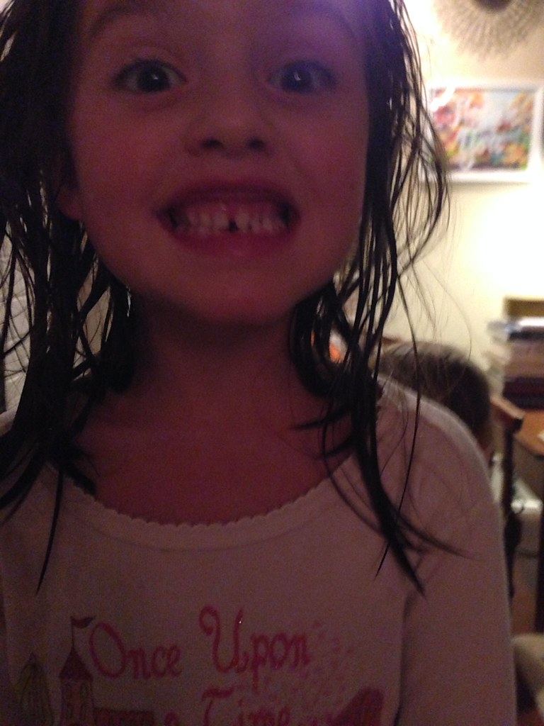 someone lost a tooth!